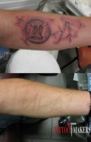 Маскировка шрамов татуировкой в три д.